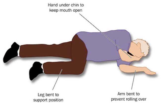 Recovery Position | First Aid Accident & Emergency